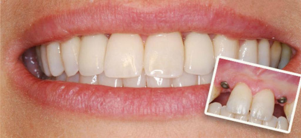 Зубные импланты сколько стоят в спб